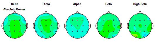 Normal QEEG Brainmaps