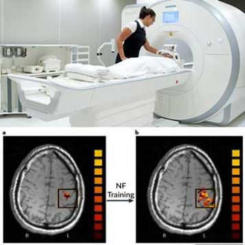 FMRI Neurofeedback Therapy