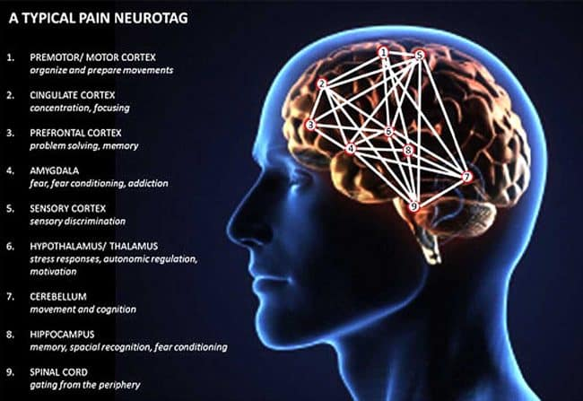 Neurofeedback Q&A: Real Pain Vs Unreal Pain