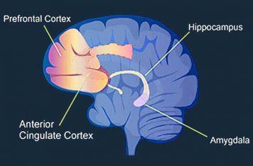 PFC Depression Treatment Gold Coast prefrontal cortex